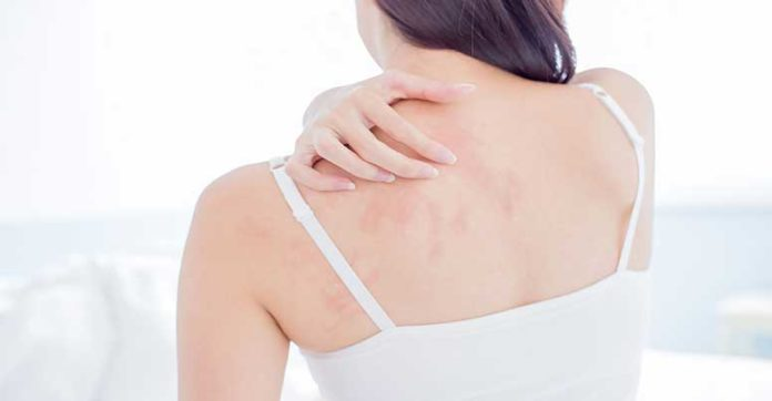 Eczema-atopico