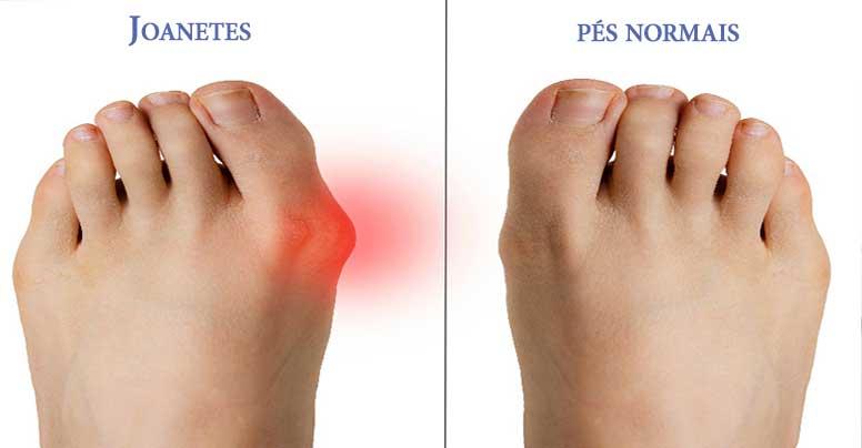 sintomas de joanetes